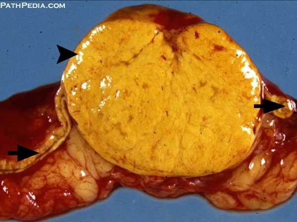 Gross Pathology Images Of Adrenal By PathPedia Com